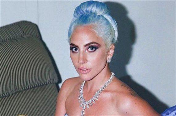 """¿Quieres ver la cara de Lady Gaga antes de ser famosa?: """"¡Muy fuerte!"""""""