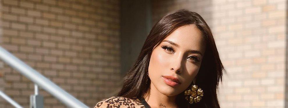 La espalda de Luisa Fernanda W tiene algunas manchas en la piel por falta de pigmentación.